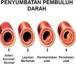 Pengobatan Darah Kotor - Penyembuhan Penyumbatan Pembuluh Darah